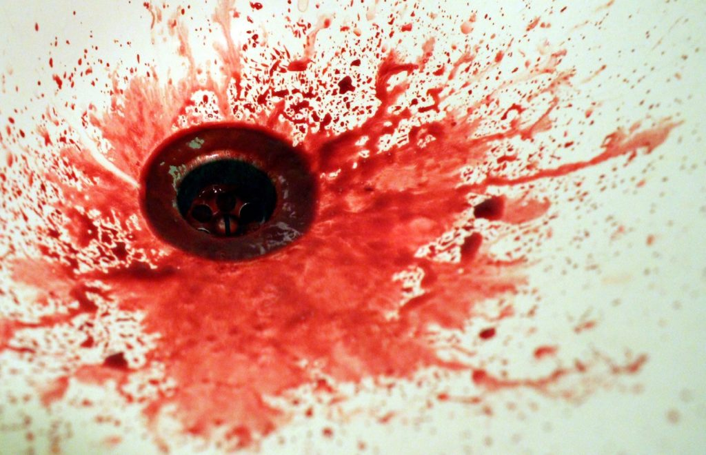 Britain's Deranged Fox Mutilator